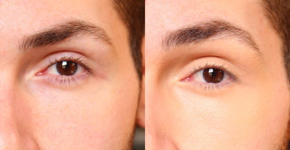 bb cream de olhos medio loreal na pele