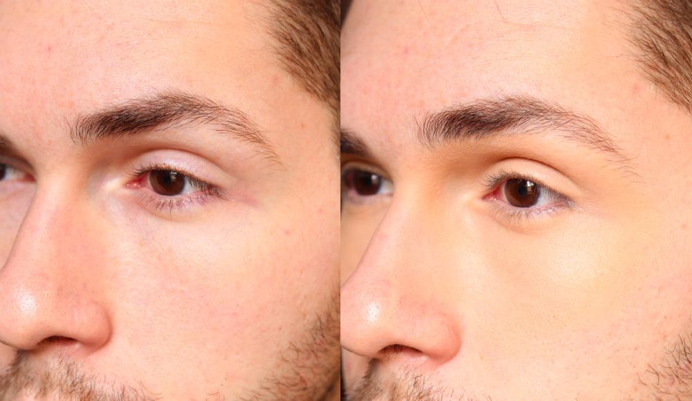 bb cream olhos antes e depois loreal medio
