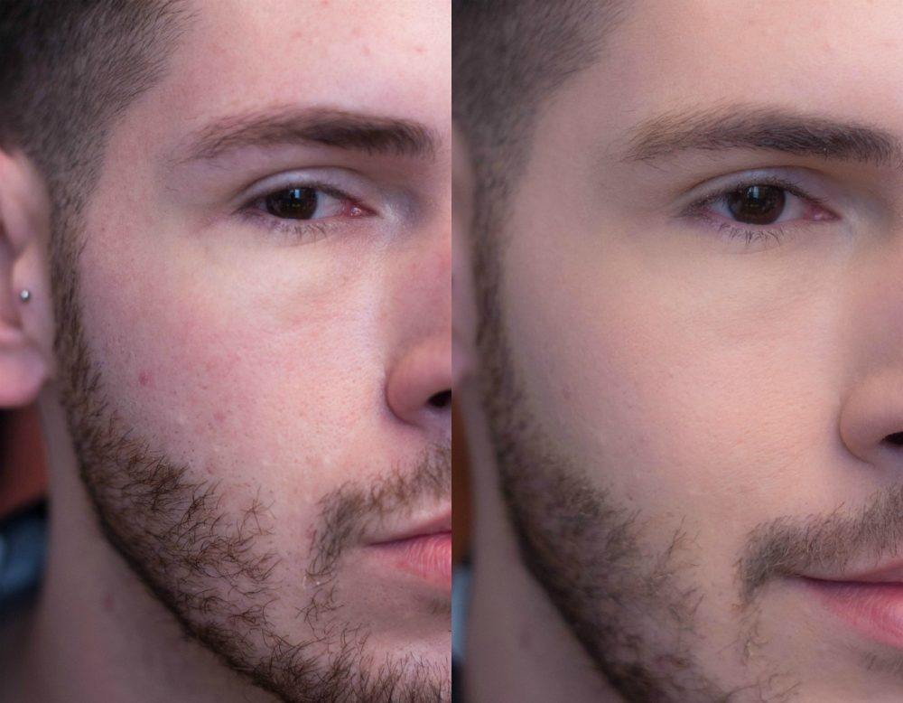 antes e depois detalhe bb blur la roche posay